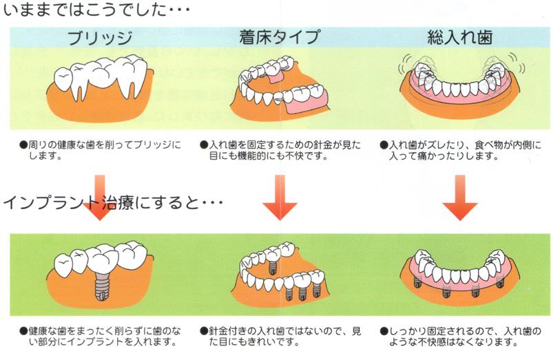 歯科 インプラント ホワイトニング ニシキ歯科